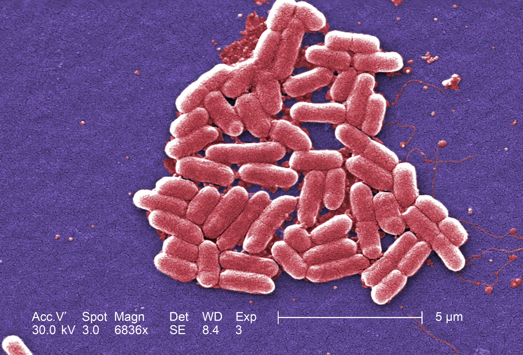The mcr-1 plasmid-borne colistin resistance gene has been found primarily in Escherichia coli, pictured.