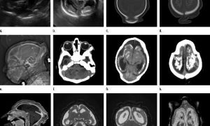 MRI images obtained in the case of an 18-year-old woman with confirmed Zika virus infection in Brazil