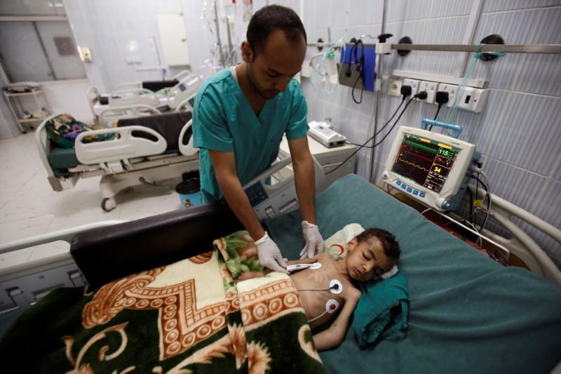 A nurse checks a boy at a hospital intensive care unit in Sanaa, Yemen