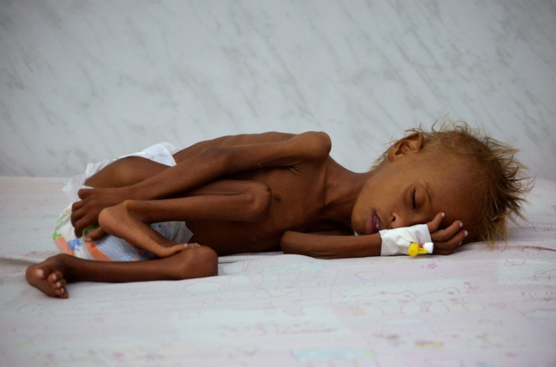 Salem Abdullah Musabih, 6, lies on a bed at a malnutrition intensive care unit at a hospital in the Red Sea port city of Hodaida, Yemen