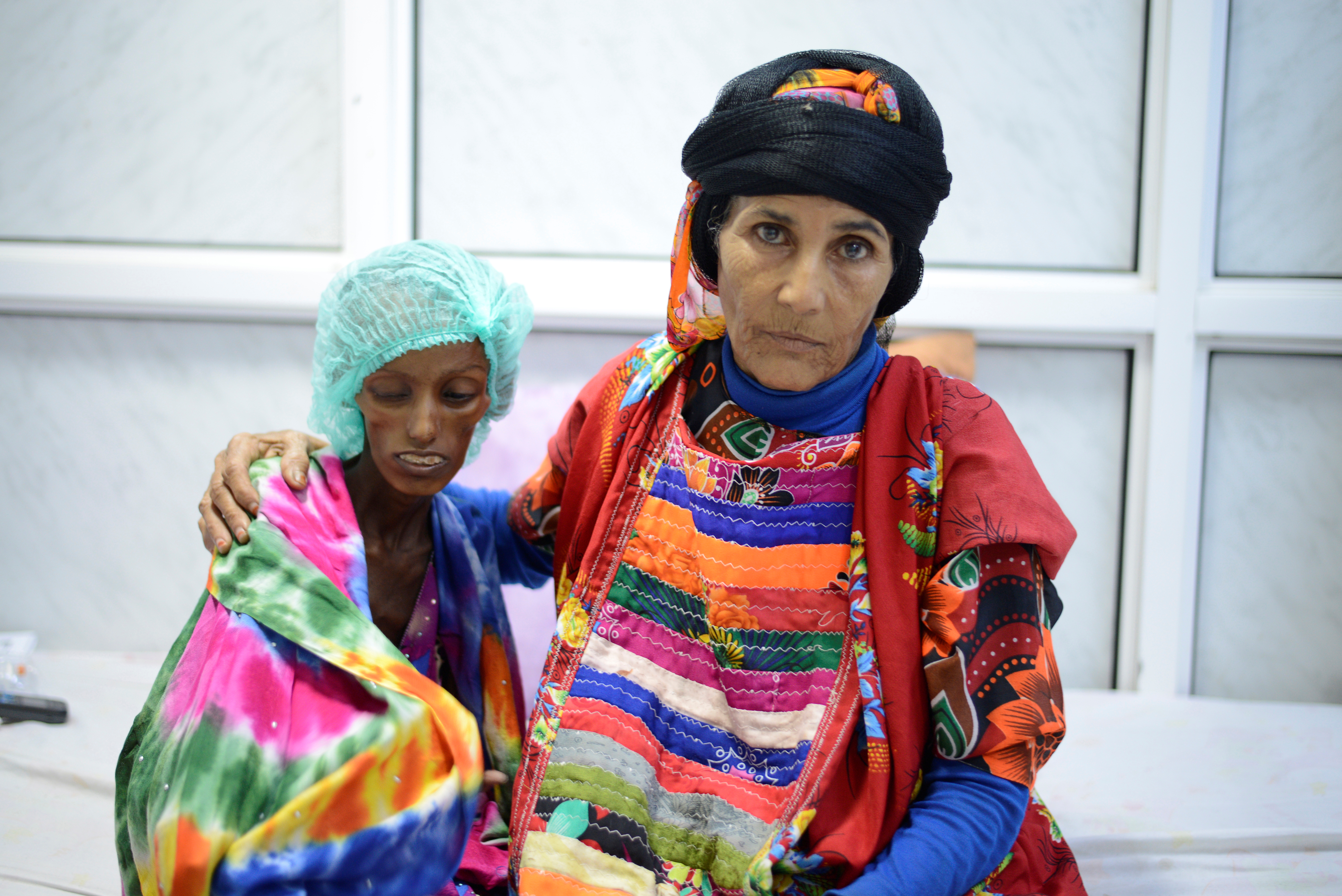 Malnourished woman with her relative at Yemeni hospital