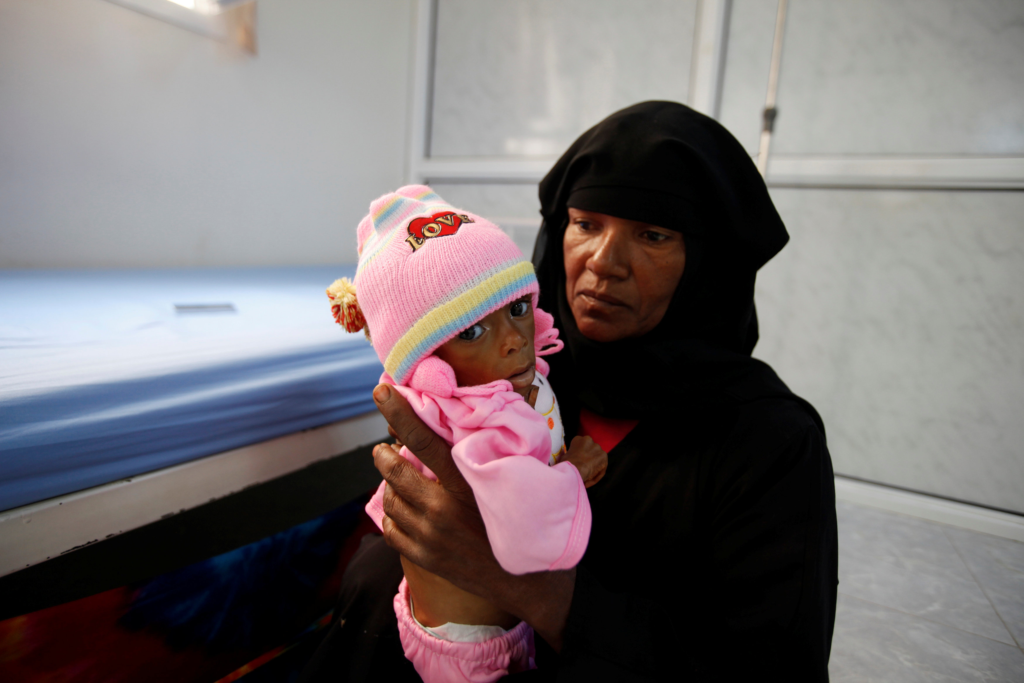a Yemeni woman holds her malnourished son