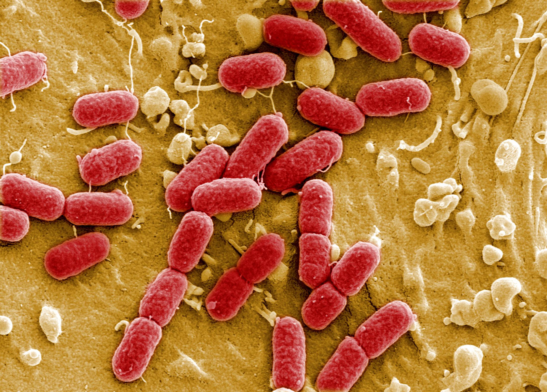 electronic microscope of superbug