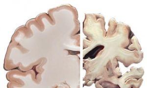 A healthy brain compared to a brain affected by a severe case of Alzheimer's Disease. Courtesy of Wikimedia Commons