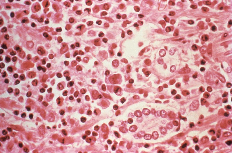A micrographic study of liver tissue seen from a Hantavirus pulmonary syndrome (HPS) patient seen in this undated photo obtained by Reuters, July 6, 2017. Centers for Disease Control and Prevention/Handout via REUTERS