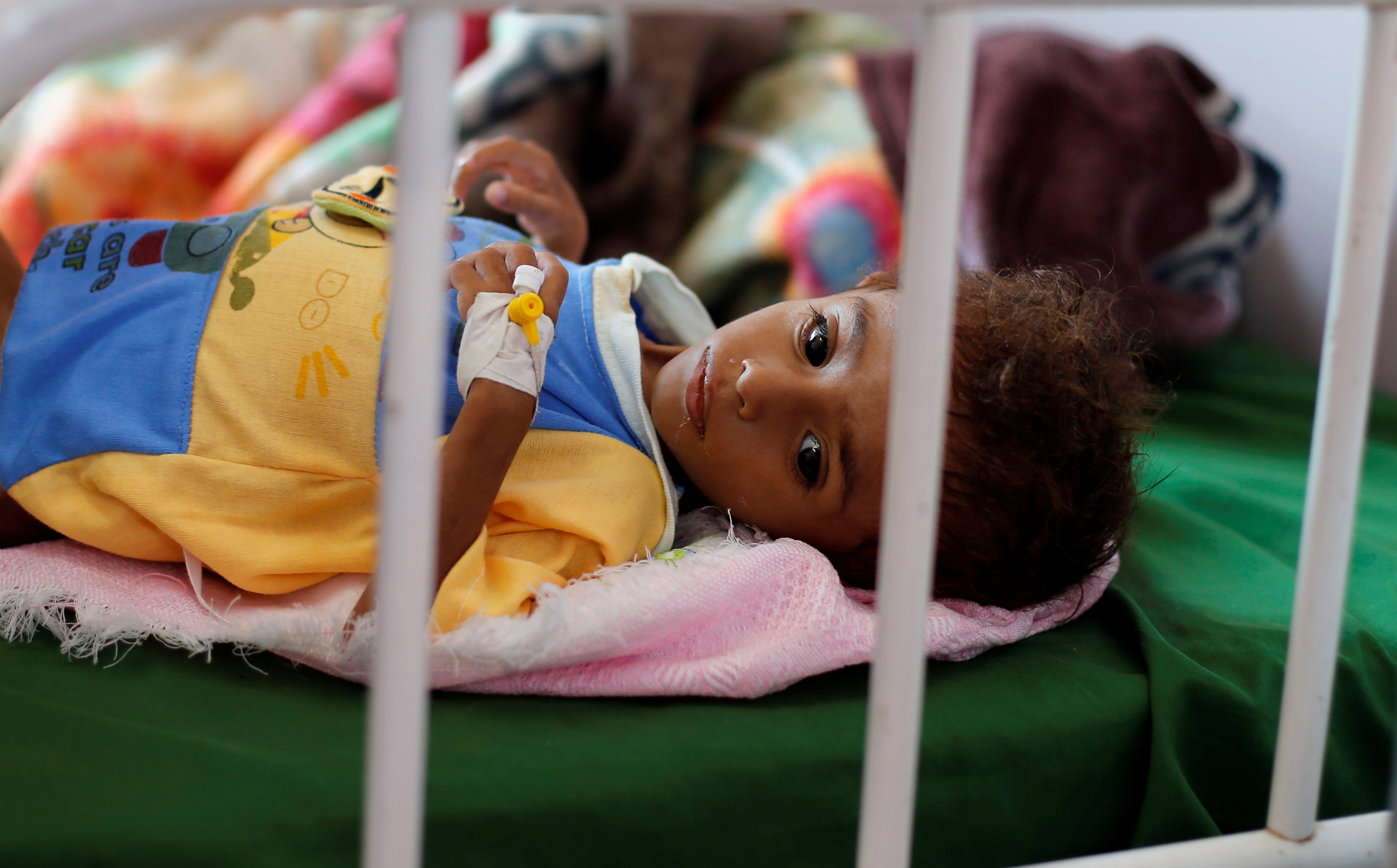 A malnourished boy lies on a bed at a malnutrition treatment center in Sanaa, Yemen October 7, 2018. REUTERS/Khaled Abdullah