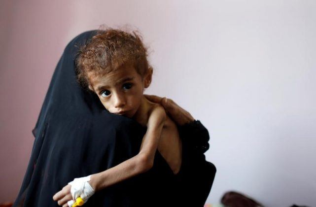 A woman holds a malnourished boy in a malnutrition treatment centre at the al-Sabeen hospital in Sanaa, Yemen October 6, 2018. REUTERS/Khaled Abdullah TPX IMAGES OF THE DAY - RC17865BEC40