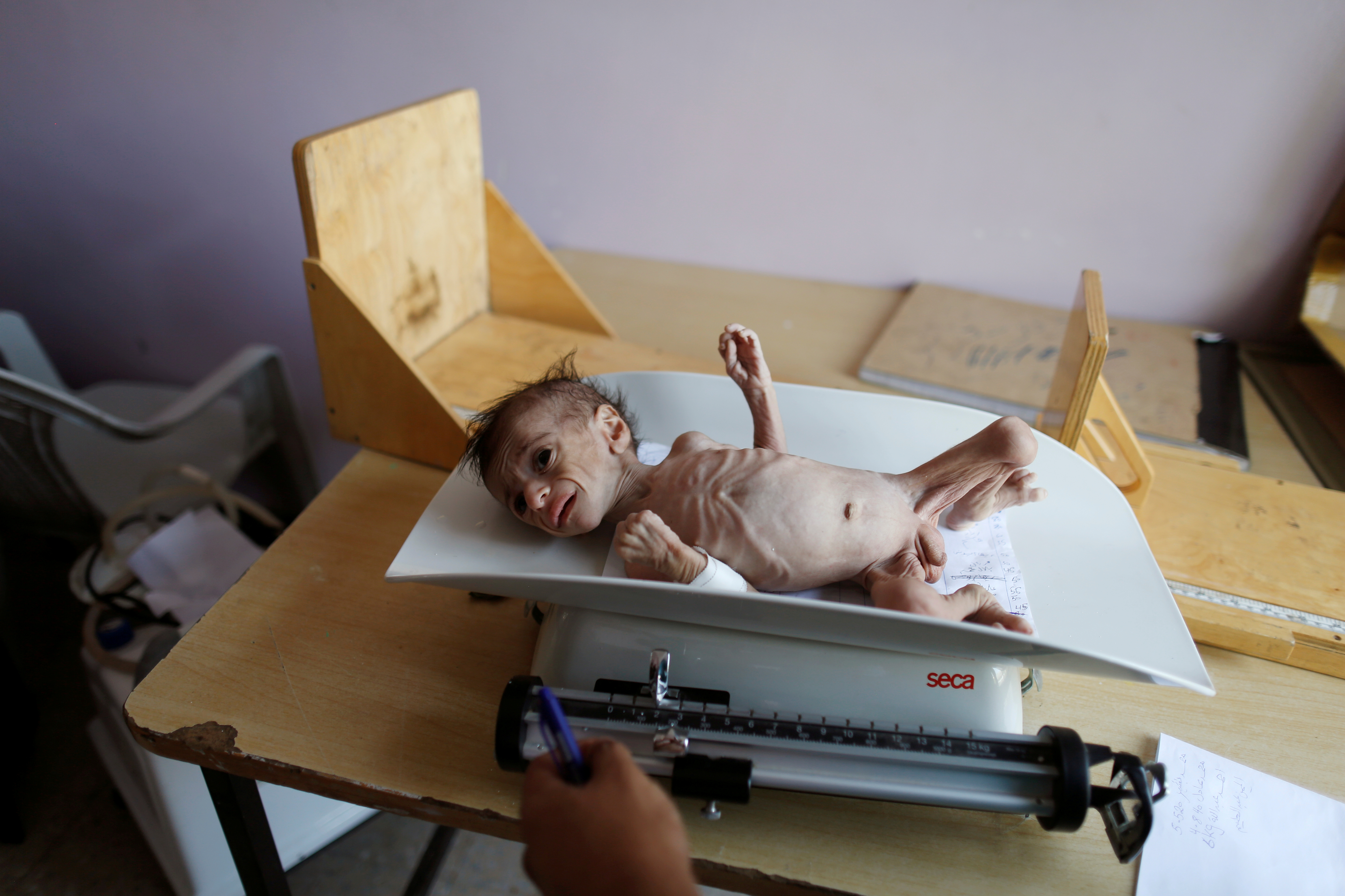 FILE PHOTO: A malnourished boy lies on a weighing scale at the malnutrition ward of al-Sabeen hospital in Sanaa, Yemen September 11, 2018. REUTERS/Khaled Abdullah/File Photo