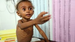 Malnourished Ferial Elias, 2, gestures as she is being weighed at a malnutrition treatment ward at al-Thawra hospital in Hodeidah, Yemen November 3, 2018. Picture taken November 3, 2018. REUTERS/Abduljabbar Zeyad