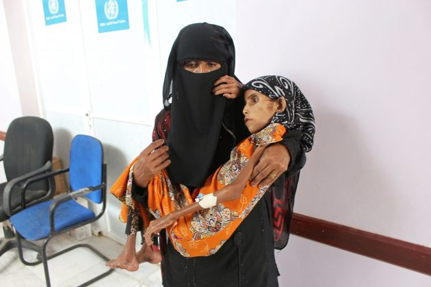 The sister of malnourished Fatima Ibrahim Hadi, 12, who weighs just 10 kg, carries her at a clinic in Aslam of the northwestern province of Hajjah, Yemen February 12, 2019. Picture taken February 12, 2019. REUTERS/Eissa Alragehi