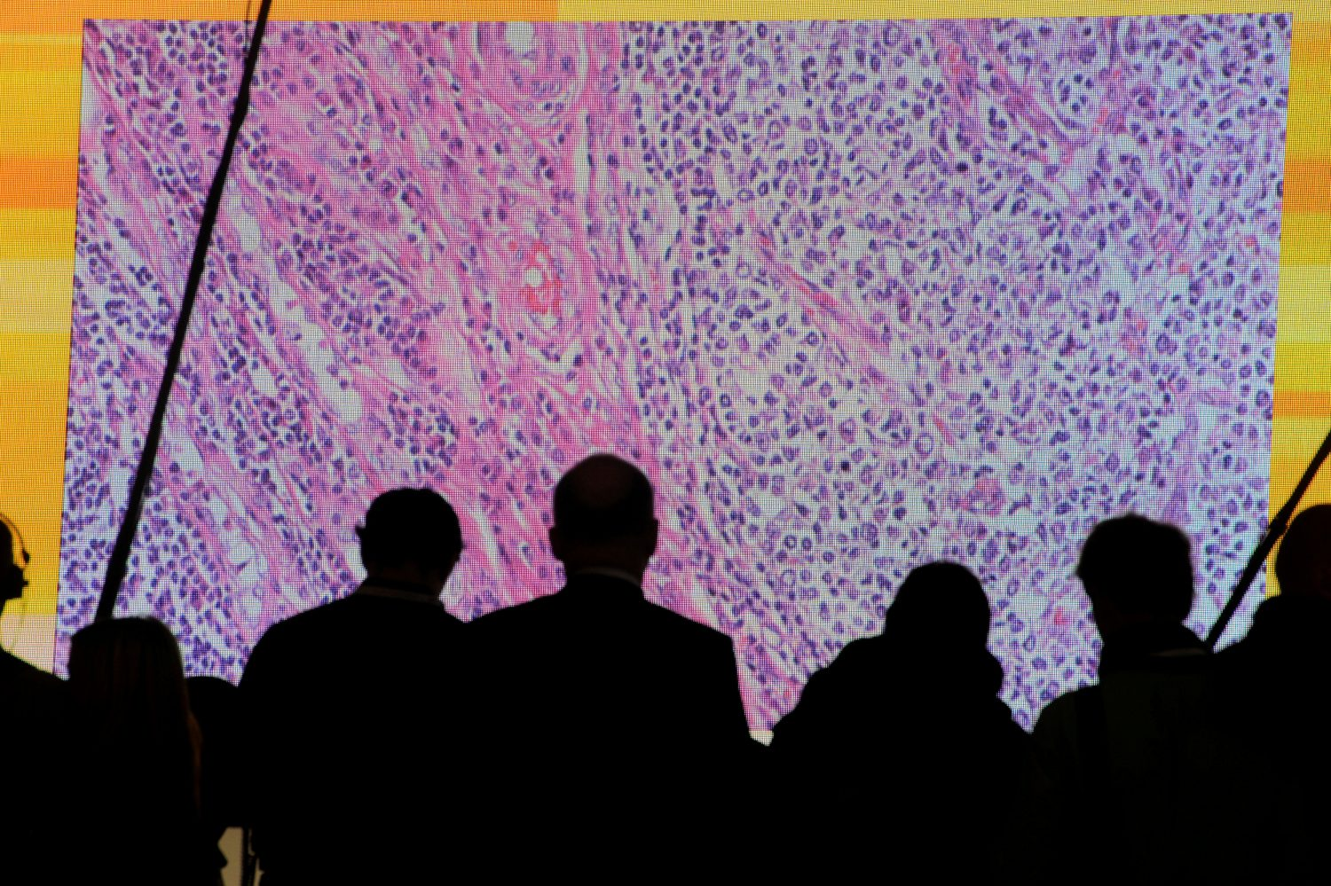 FILE PHOTO: Cancer cells are seen on a large screen connected to a microscope at the CeBit computer fair in Hanover, Germany, March, 6, 2012. REUTERS/Fabian Bimmer/File Photo